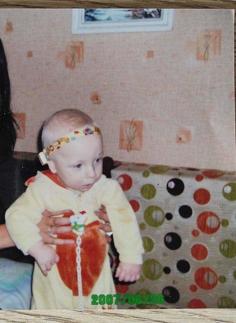 Gvidas gimė be ausyčių