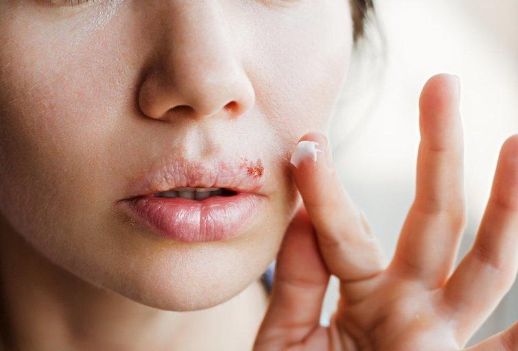 Lūpų pūslelinė (nuotr. Shutterstock.com)
