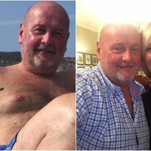 Vyro nekaltas apgamas pasirodė esąs klastingas vėžys: skubiai įspėja kitus